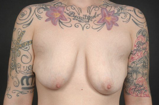 Breast Augmentation with Lift Before