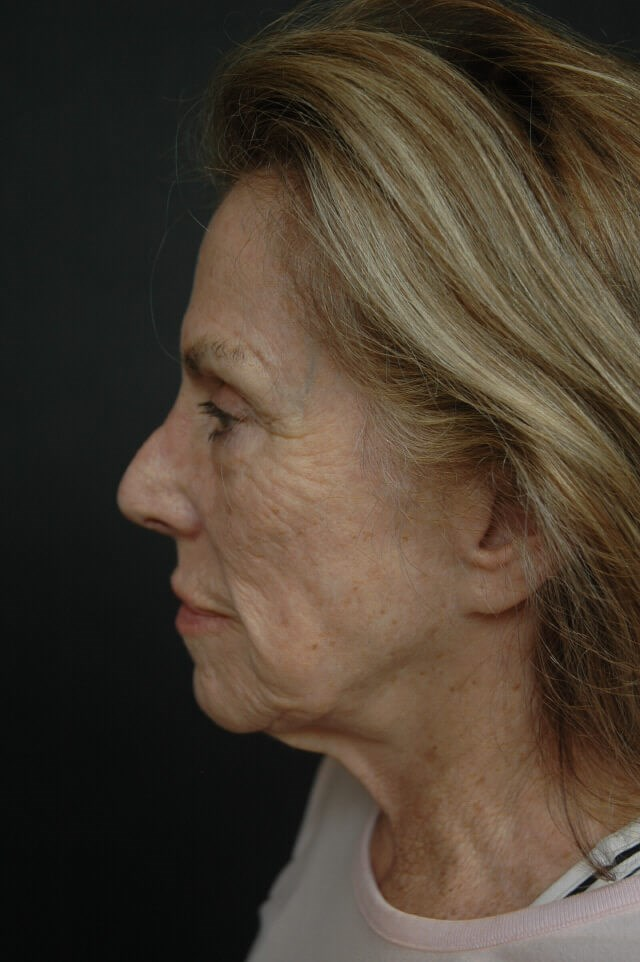 Facelift/laser/eyelid surgery Before