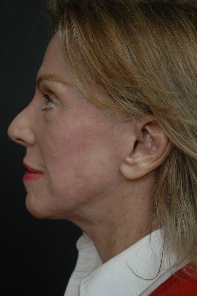 Facelift/laser/eyelid surgery After
