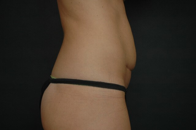 Liposuction - Abdomen Before