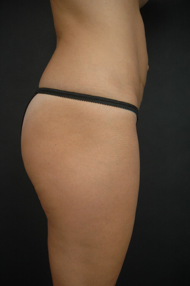 Liposuction - Abdomen After