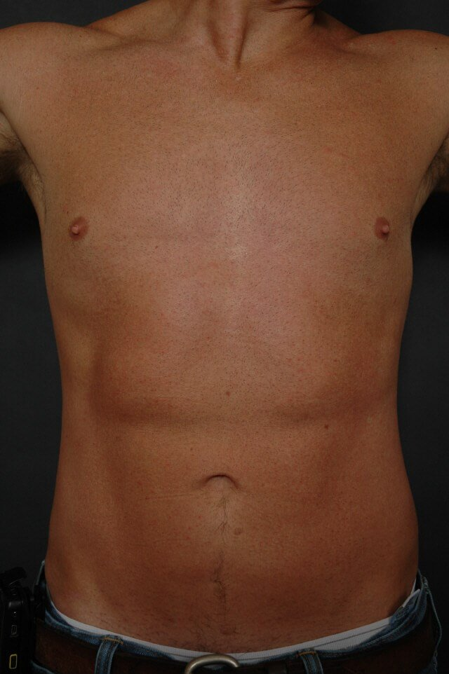 Liposuction - abs/love handles After