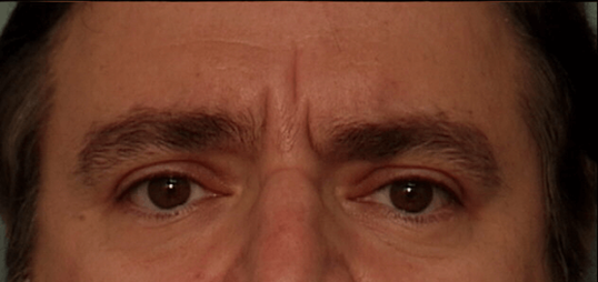Botox - Glabella Before