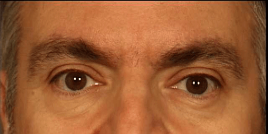 Botox - Glabella After
