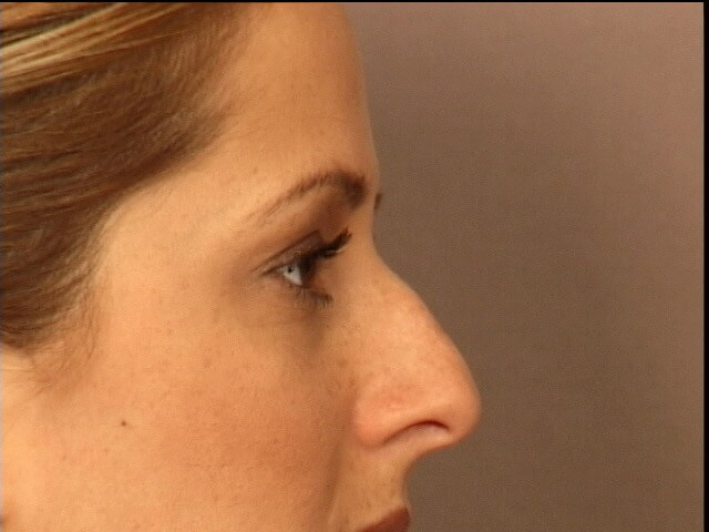 RHINOPLASTY-LATERAL VIEWS Before