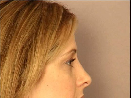 RHINOPLASTY-LATERAL VIEWS After