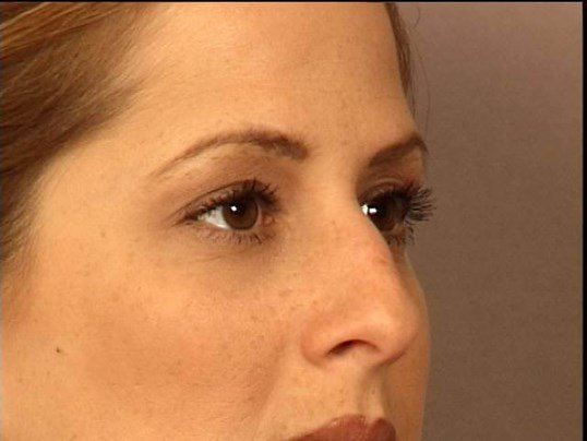 RHINOPLASTY-LAT-OBLIQ VIEWS Before